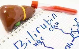 Билирубин в моче у ребенка 17- что это значит: норма, причины повышенного