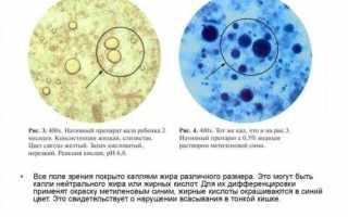 Копрограмма у грудничков