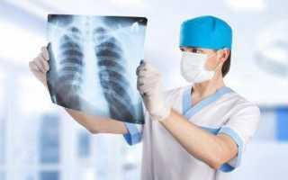 Для чего необходима рентгенография грудного отдела позвоночника