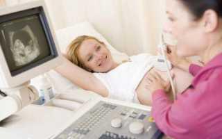 Узи во время беременности: на какой неделе что видно