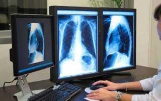 Можно ли делать флюорографию при грудном вскармливании