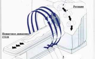 Рентгеновская компьютерная томография (кт)