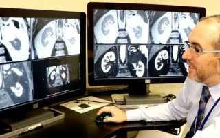 Анализ мочи при аппендиците, онкологии или диабете