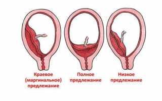 Кровотечение на 23 неделе беременности!!! девочки!!! подскажите!!!