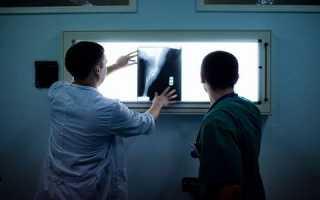 Утилизация рентгеновской плёнки в москве