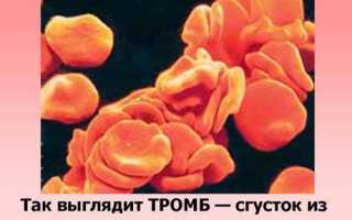 Повышен тромбокрит у ребенка в крови