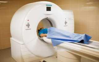 Метаболическая энцефалопатия головного мозга: что это такое, причины, лечение, симптомы, признаки