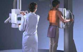 Стационарные рентгеновские аппараты35