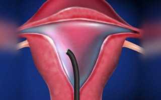 Менструации после проведения гистероскопии