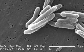 Антитела к helicobacter pylori igg, igm, iga