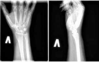 Рентген руки, рентгенография кисти и запястья: что показывает рентгенограмма, снимки и фото здоровой и сломанной ладони и пальца человека