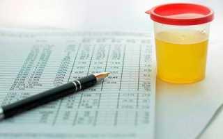 Правила сдачи мочи на общий анализ: подготовка и сбор биоматериала