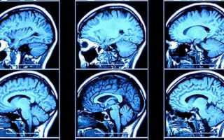 Что определяет томография головы