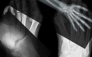 Утилизируем рентгеновскую пленку