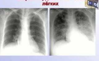 Какие признаки отека легких можно увидеть на рентгене