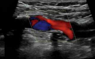 Все про узи вен и артерий нижних конечностей: показания, проведение, результаты и нормы