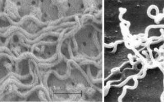Антитела к сифилису