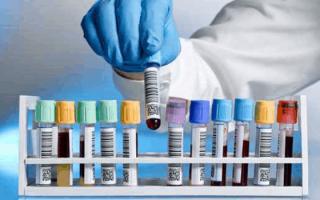 Через какое время проявляется гепатит с после заражения