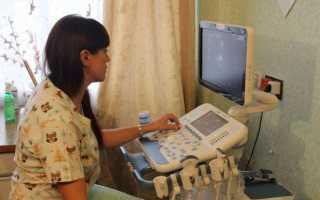 Можно ли узнать о беременности на сроке 1,2 недели?