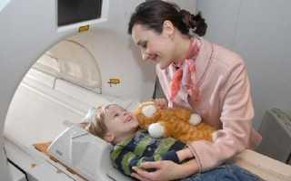 Когда делают компьютерную томографию маленьким детям?