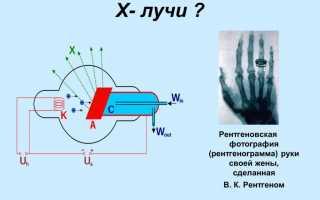 Изобретение рентгеновского излучения