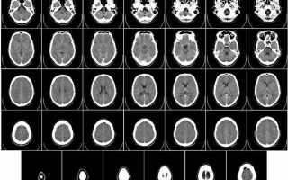Креативные и заводные рентгеновские снимки из медицинского календаря