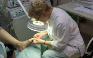 Лечение грибков в крови