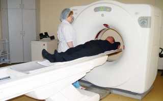 Опухоль мозжечка (рак мозжечка, новообразование мозжечка)