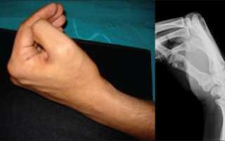 Рентгенограмма лучезапястного сустава