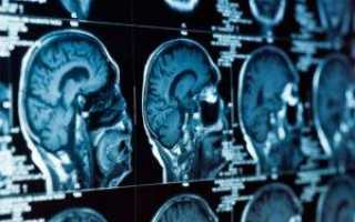 Магнитно-резонансная томография или мрт