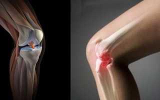 Рентген коленного сустава: цены, адреса и запись онлайн