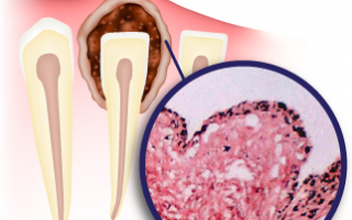 Лечение кисты зуба в москве