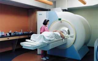 Что такое дуплексное сканирование сосудов и брахиоцефальных артерий, его важность и правила проведения