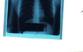 Пневмония на снимке флюорографии: описание, как выглядит