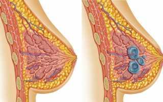 Узи молочных желез при мастопатии: как и когда делают?