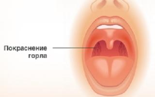 Общий анализ крови при гриппе у ребенка