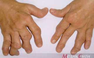 Анализы на ревматоидный артрит: перечень и расшифровка