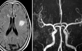 Мрт цнс (центральная нервная система)