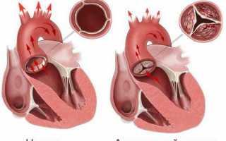 Как делают процедуру узи сердца женщинам