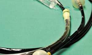 Эндоскопия кишечника: подготовка, когда делают и как проводится, стоимость в москве