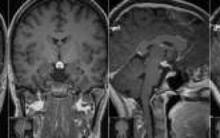 Мрт гипофиза при повышенном пролактине у женщин
