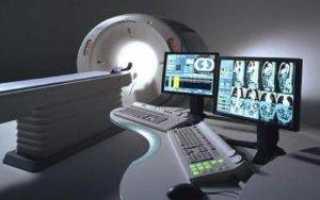 Компьютерная томография всего организма