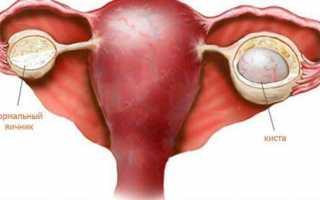 Ультразвуковое исследование органов малого таза