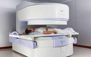 Диагностика заболеваний позвоночника: от рентгенографии до мрт