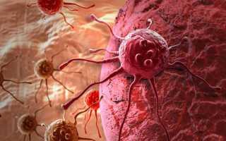Зачем нужен анализ крови hla-b27