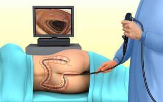 Лучше ли мрт кишечника чем колоноскопия и можно ли заменить процедуру