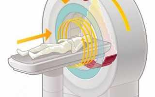 Компьютерная томография мочевого пузыря: метод диагностики хронической патологии и экстренных нарушений