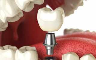 Можно ли делать мрт с имплантами зубов и брекет-системами
