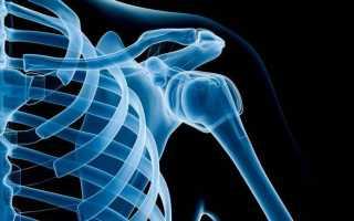 Что такое рентгенография и какие результаты дает обследование