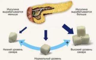 Низкий инсулин: что значит пониженный уровень в крови, как его повысить